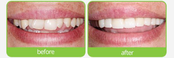 dental crown in epping