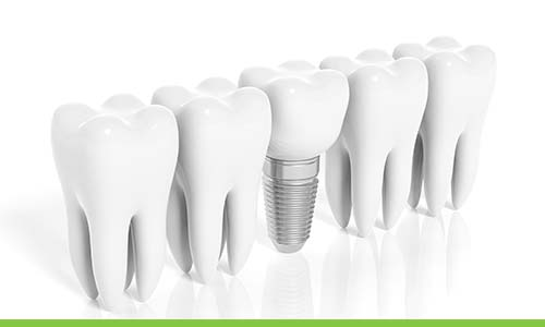 dental implants in epping