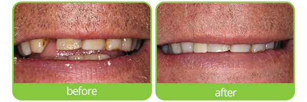 epping dental implants