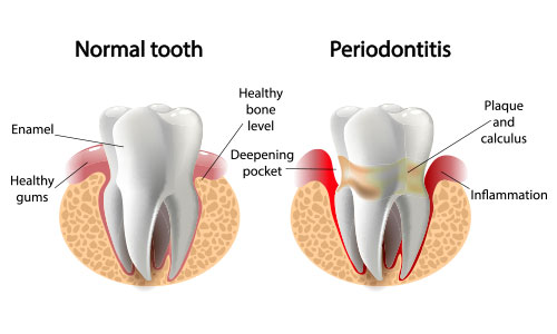 periodontitis treatment epping