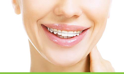 teeth-straightening-epping