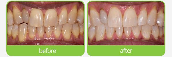 teeth whitening epping