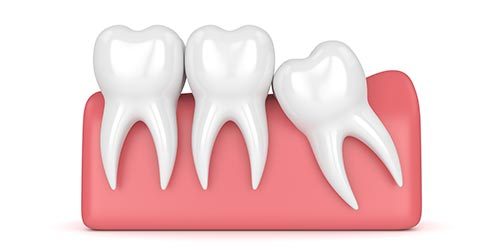wisdom tooth removal epping