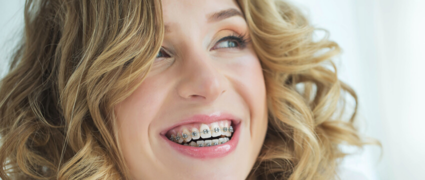 Cost Of Braces – Know What You Should Expect