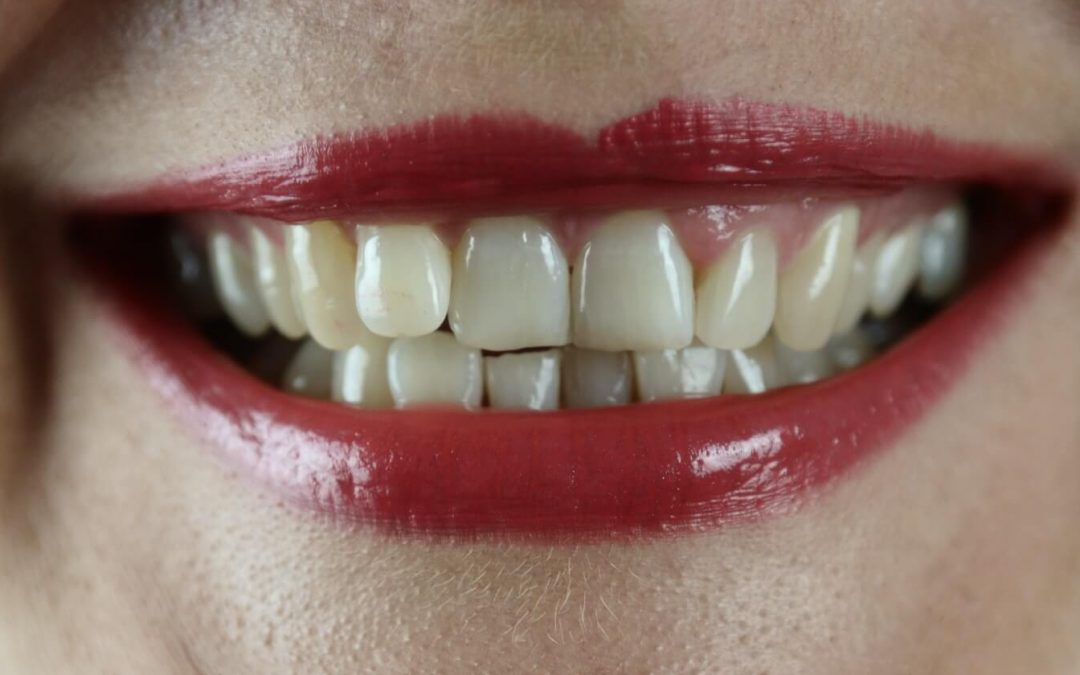 6 Ways Straight Teeth Benefits Your Health